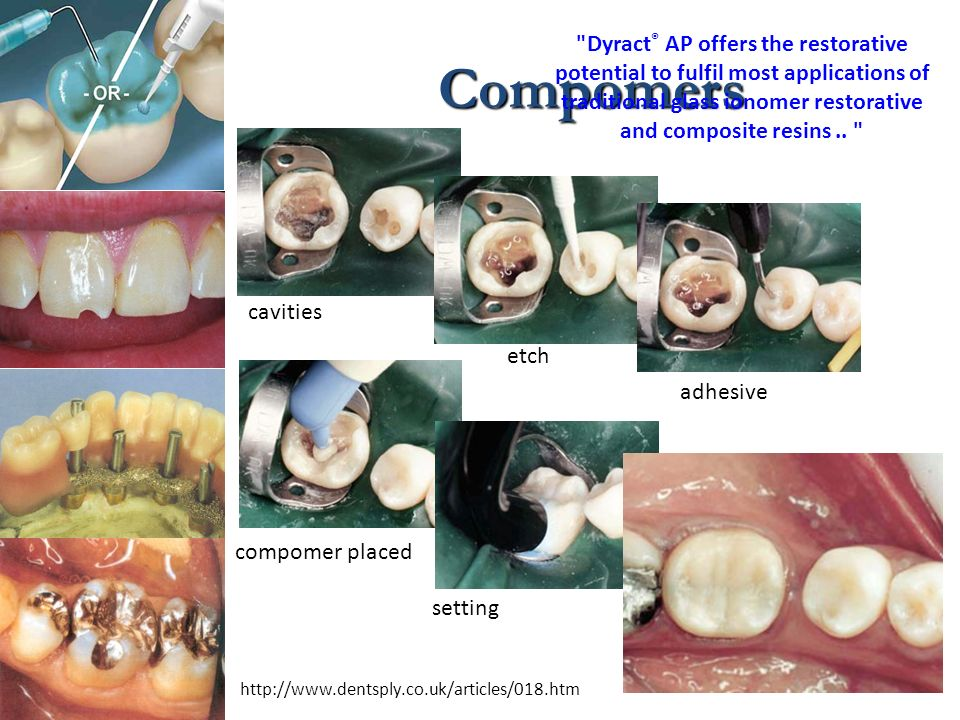 Compomers
