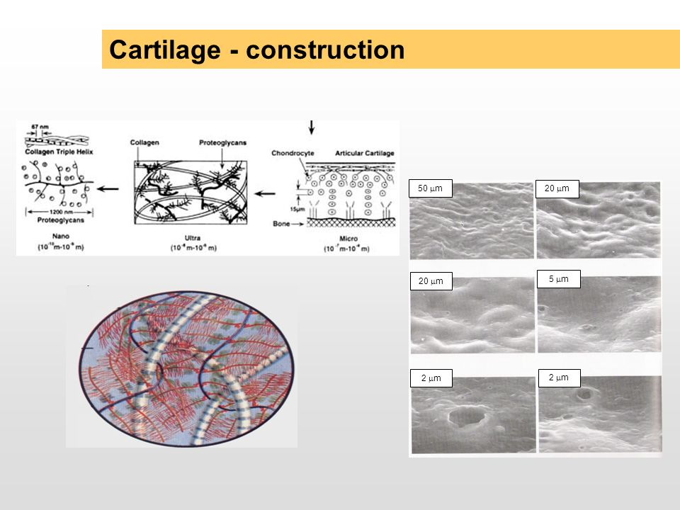 Cartilage - construction 20 m 5 m 20 m 50 m 2 m