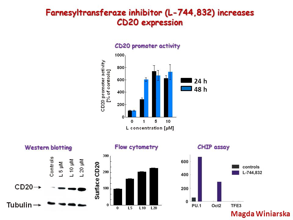 Surface CD20 24 h 48 h Magda Winiarska Farnesyltransferaze inhibitor (L-744,832) increases CD20 expression Western blotting Flow cytometry CD20 promoter activity CHIP assay