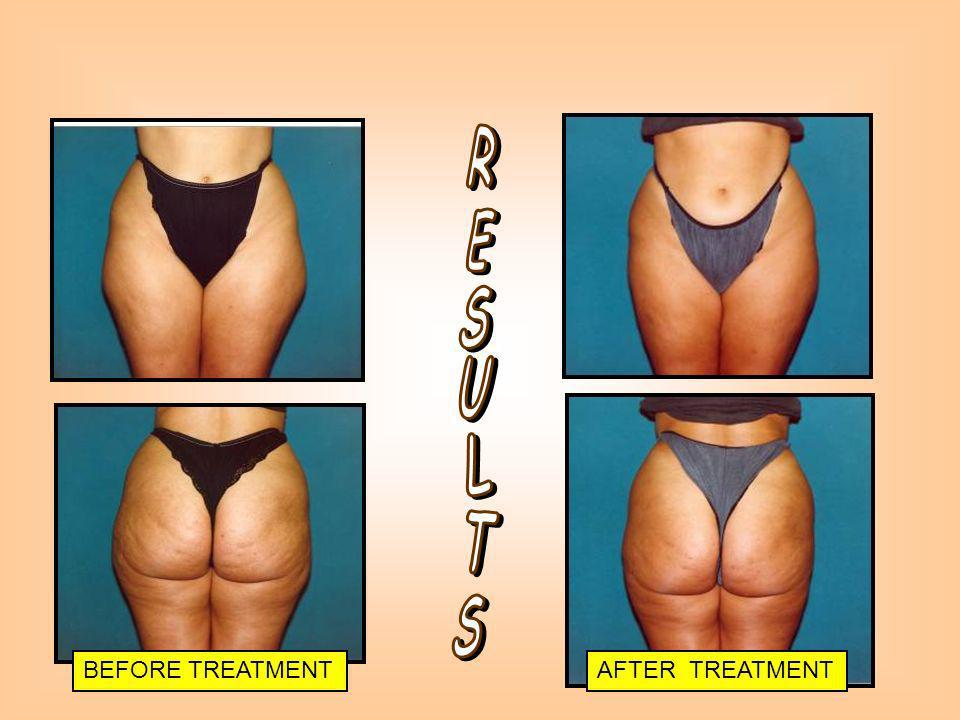 BEFORE TREATMENTAFTER TREATMENT