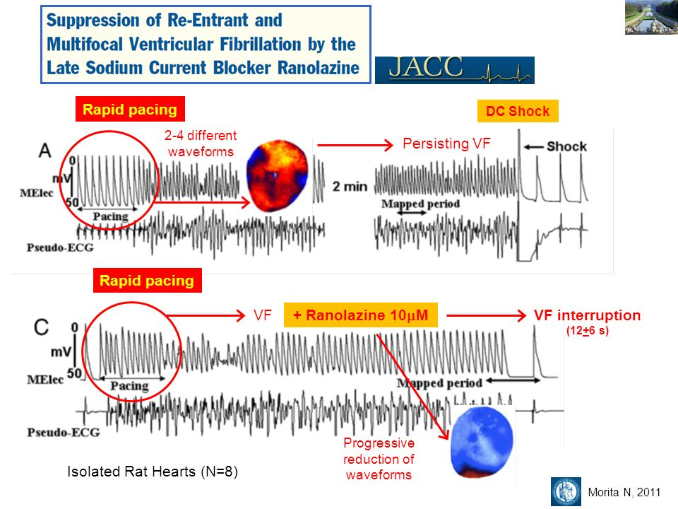 Rapid pacing 2-4 different waveforms Rapid pacing Persisting VF DC Shock VF + Ranolazine 10 M VF interruption (12+6 s) Progressive reduction of waveforms Isolated Rat Hearts (N=8) Morita N, 2011