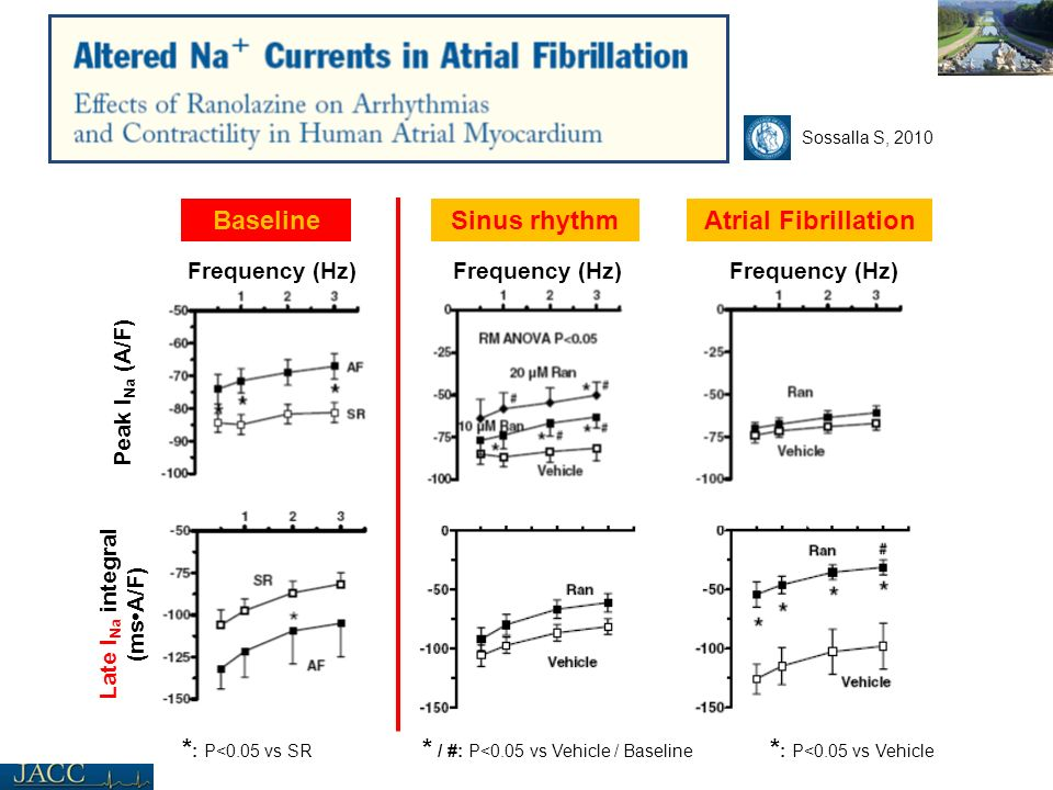 Late I Na integral (msA/F) Baseline Peak I Na (A/F) Sinus rhythmAtrial Fibrillation Frequency (Hz) * : P<0.05 vs Vehicle * / #: P<0.05 vs Vehicle / Ba