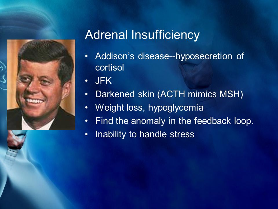 Adrenal Insufficiency Addison's disease--hyposecretion of cortisol JFK Darkened skin (ACTH mimics MSH) Weight loss, hypoglycemia Find the anomaly in the feedback loop.