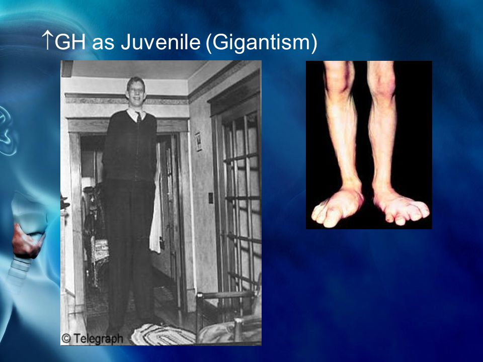  GH as Juvenile (Gigantism)