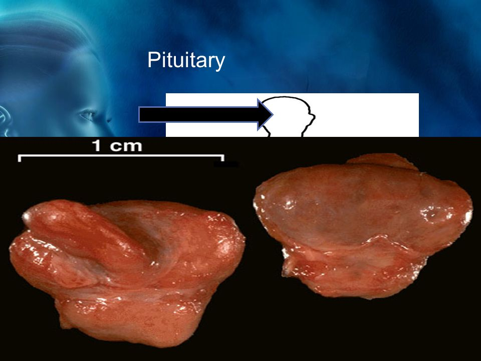 Pituitary The pituitary gland produces a growth hormone which controls growth and homeostasis.