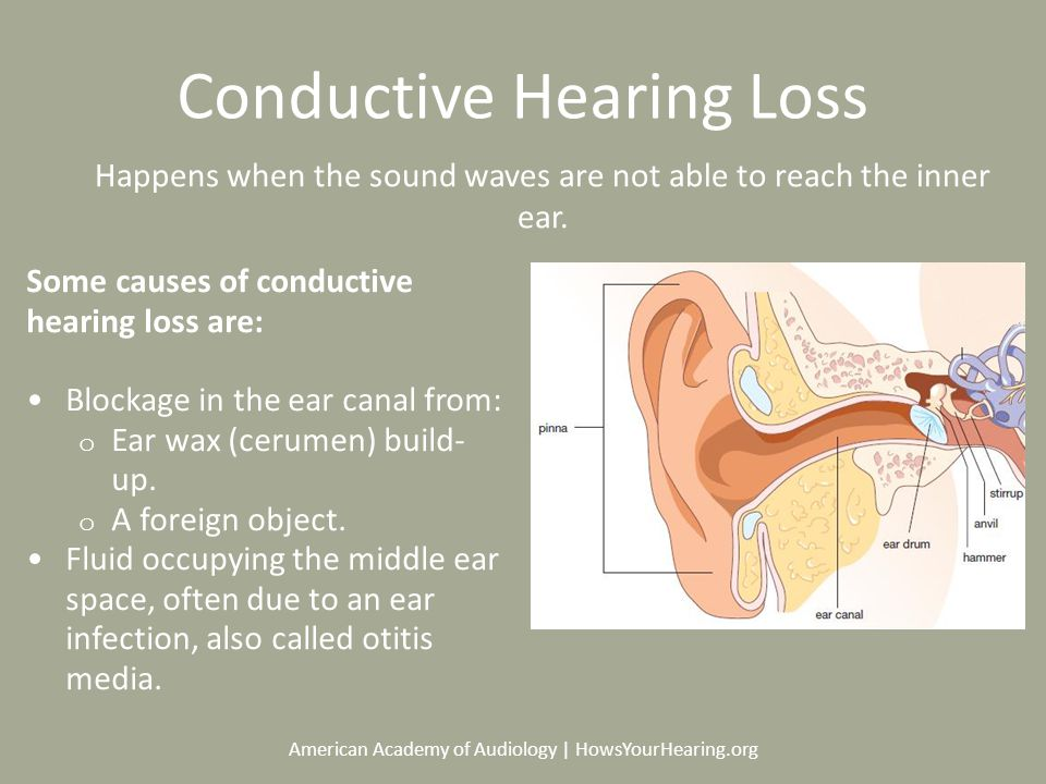 American Academy of Audiology | HowsYourHearing.org Conductive Hearing Loss Some causes of conductive hearing loss are: Blockage in the ear canal from: o Ear wax (cerumen) build- up.