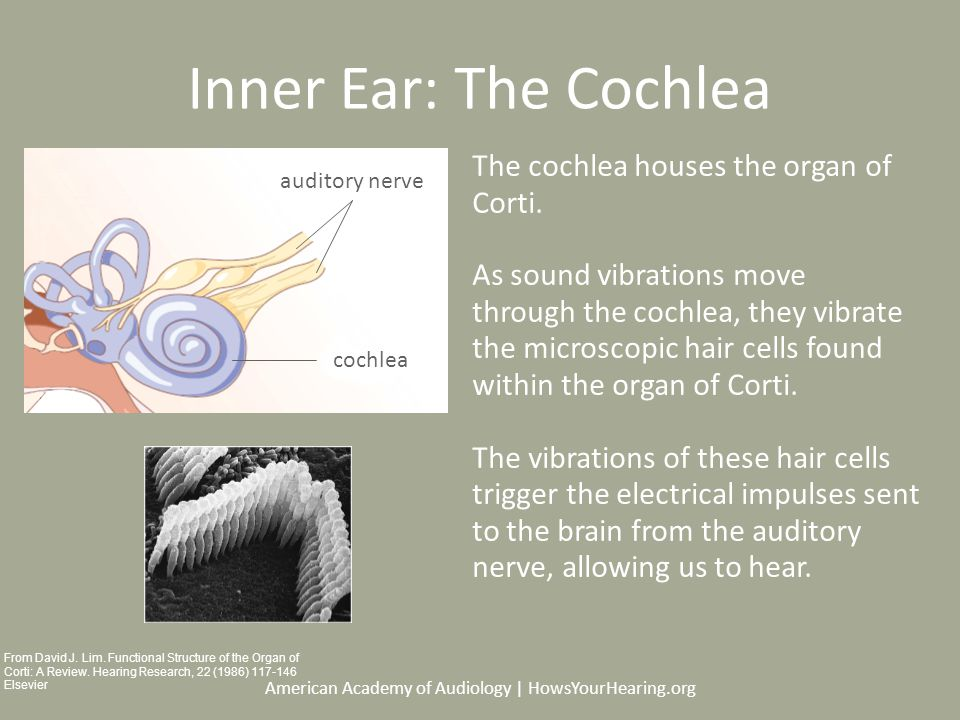 American Academy of Audiology | HowsYourHearing.org Inner Ear: The Cochlea The cochlea houses the organ of Corti.