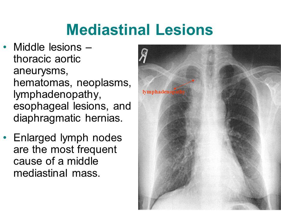 7 Mediastinal Syndromes Ppt Video Online Download