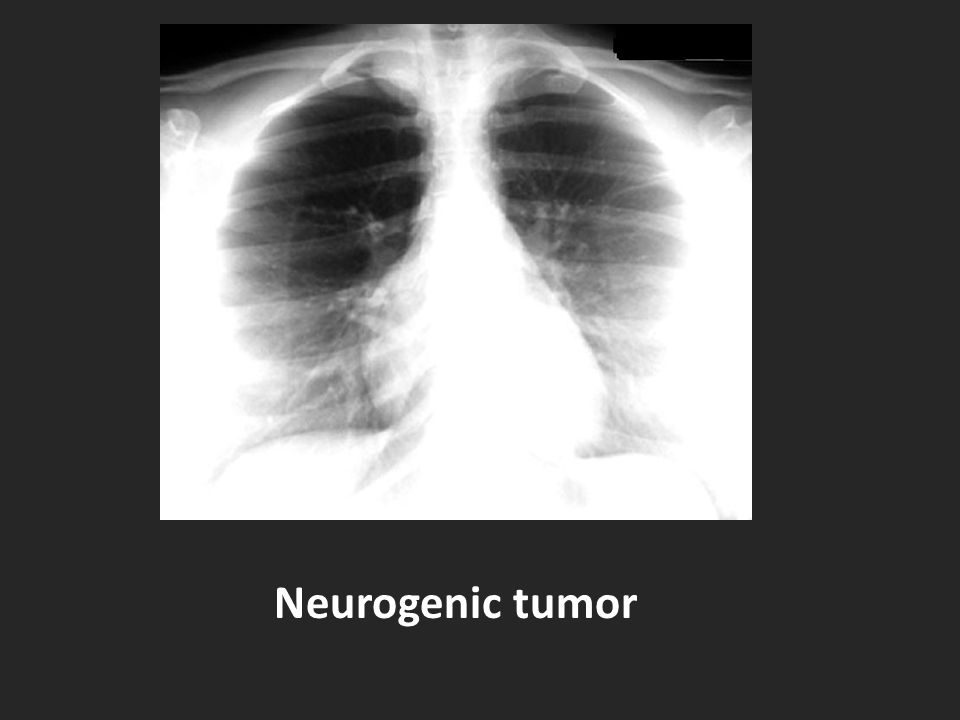 Neurogenic tumor