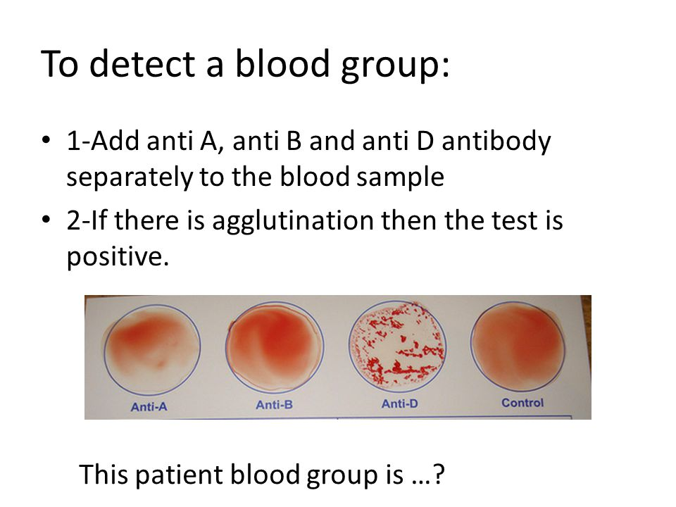 To detect a blood group: 1-Add anti A, anti B and anti D antibody separately to the blood sample 2-If there is agglutination then the test is positive.