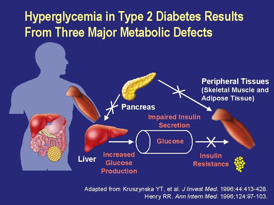 Hyperglycemia in Type 2 Diabetes Results From Three Major Metabolic Defects
