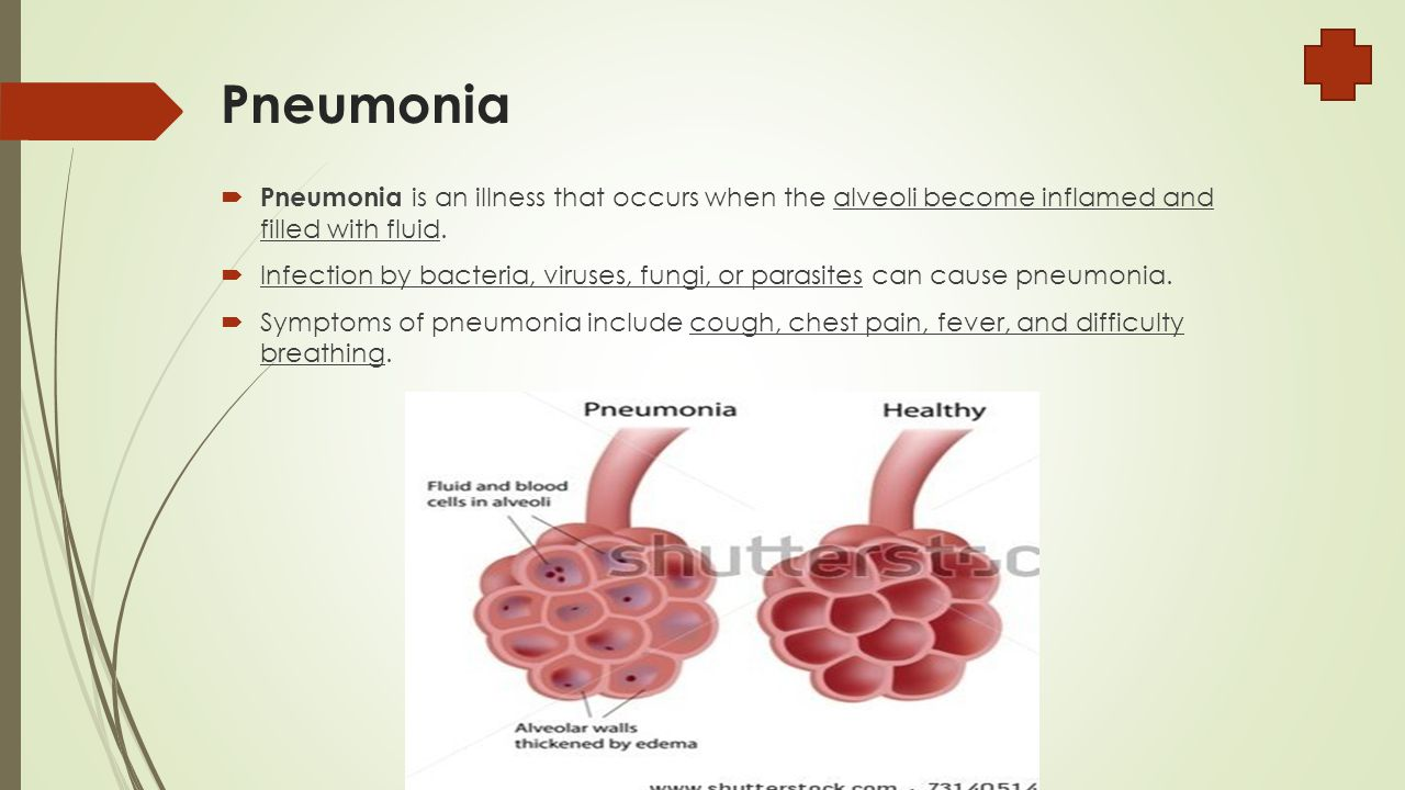 Pneumonia  Pneumonia is an illness that occurs when the alveoli become inflamed and filled with fluid.