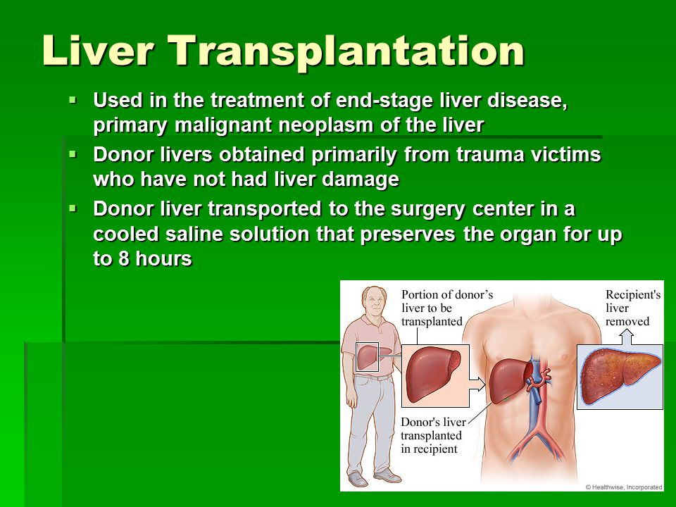 Liver Transplantation  Used in the treatment of end-stage liver disease, primary malignant neoplasm of the liver  Donor livers obtained primarily from trauma victims who have not had liver damage  Donor liver transported to the surgery center in a cooled saline solution that preserves the organ for up to 8 hours