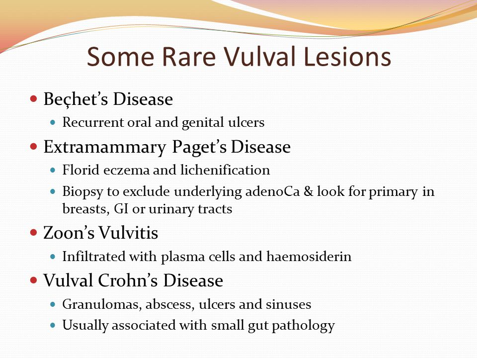 Some Rare Vulval Lesions Beçhet's Disease Recurrent oral and genital ulcers Extramammary Paget's Disease Florid eczema and lichenification Biopsy to e