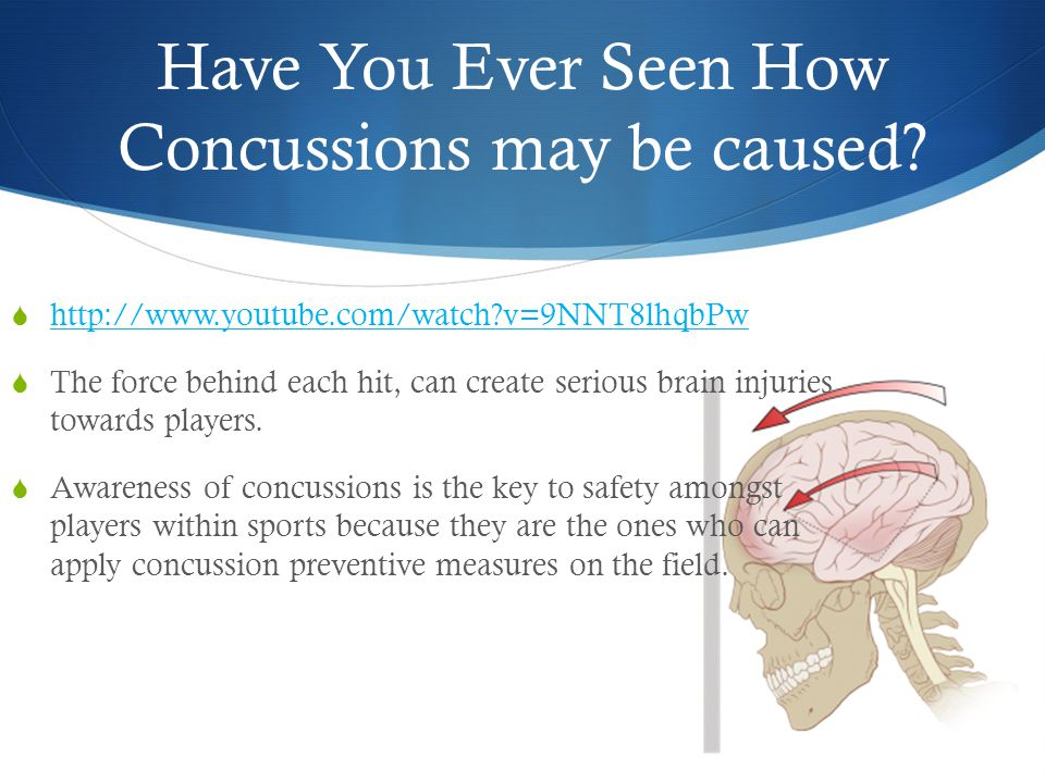 Have You Ever Seen How Concussions may be caused.