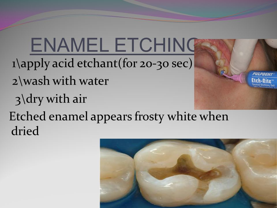 ENAMEL ETCHING 1\apply acid etchant(for 20-30 sec) 2\wash with water 3\dry with air Etched enamel appears frosty white when dried
