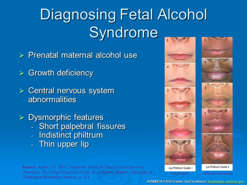 fetal alcohol syndrome disorder (june 2014) facts about fetal alcohol spectrum disorders (fasds) alcohol is a teratogen, which is a substance that causes developmental malformations in an embryo or fetus.