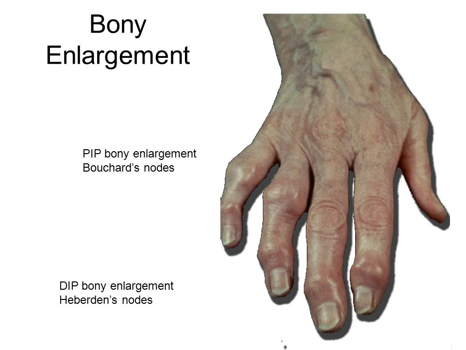 Bony Enlargement DIP bony enlargement Heberden's nodes PIP bony enlargement Bouchard's nodes