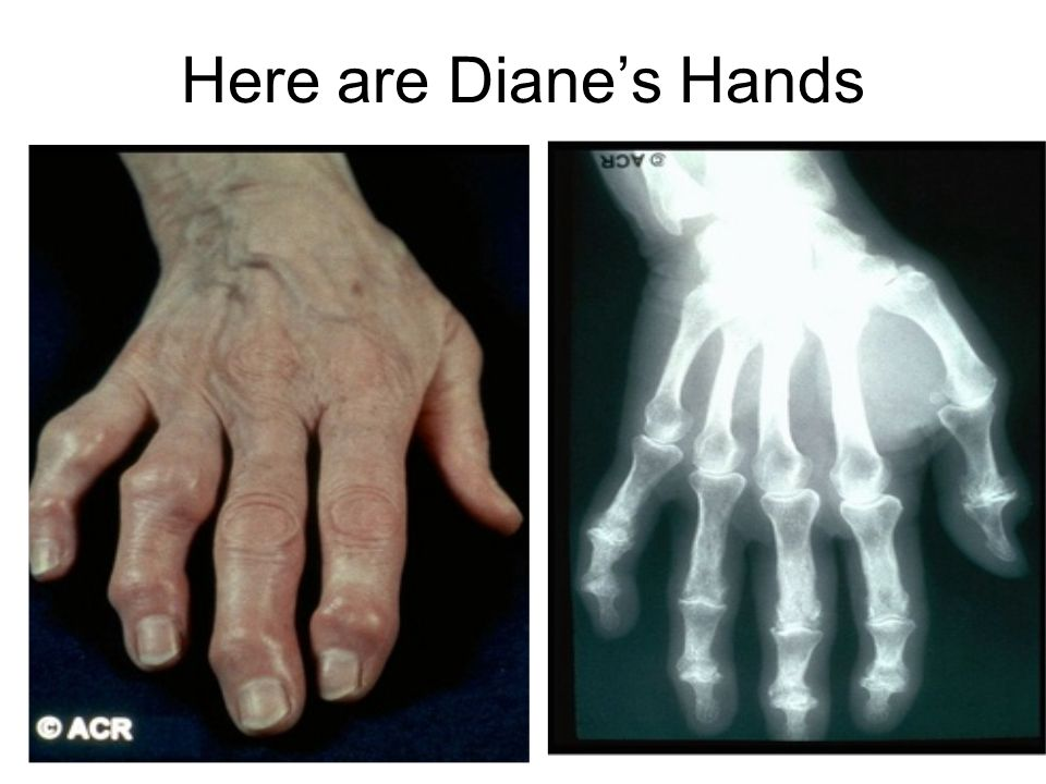 Here are Diane's Hands