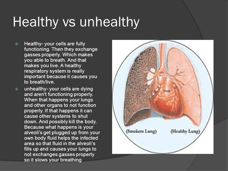 Healthy vs unhealthy  Healthy- your cells are fully functioning.