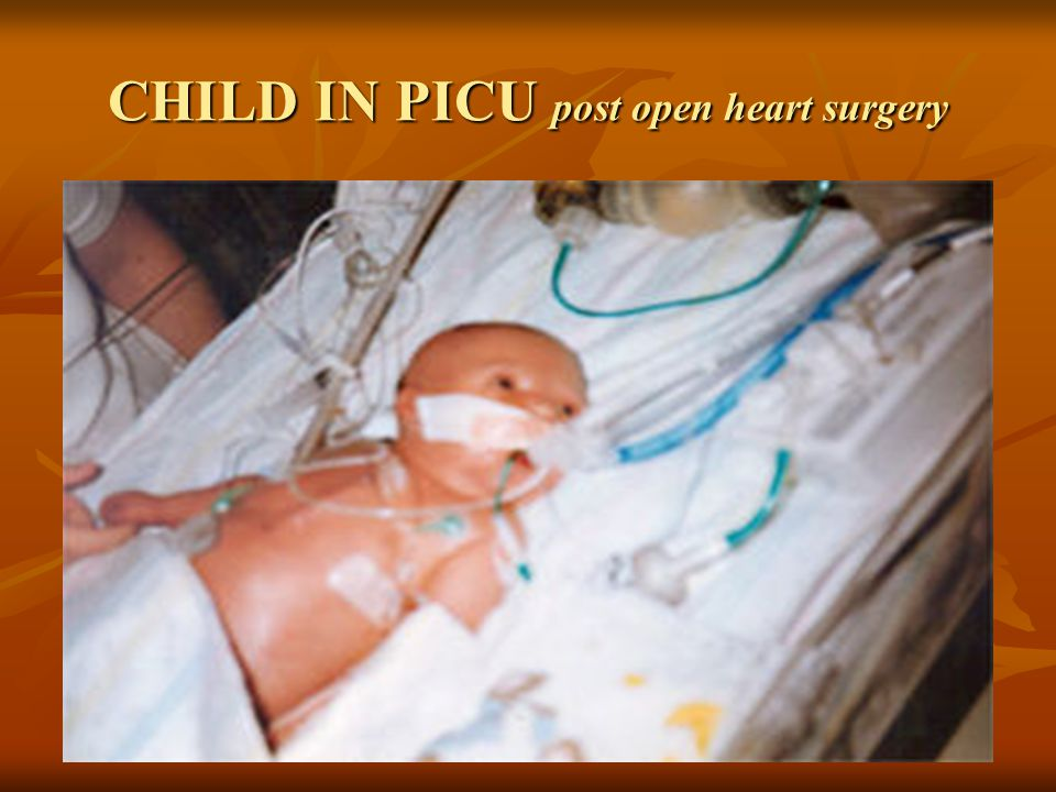 CHILD IN PICU post open heart surgery