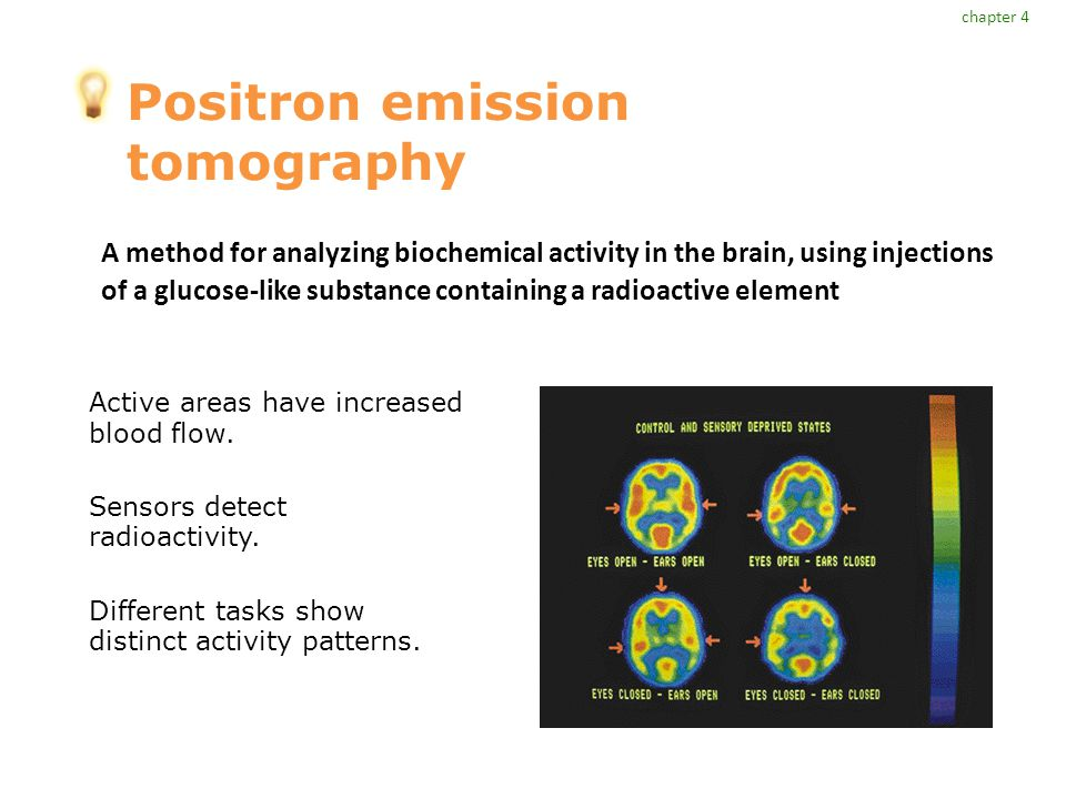 Positron emission tomography Active areas have increased blood flow.