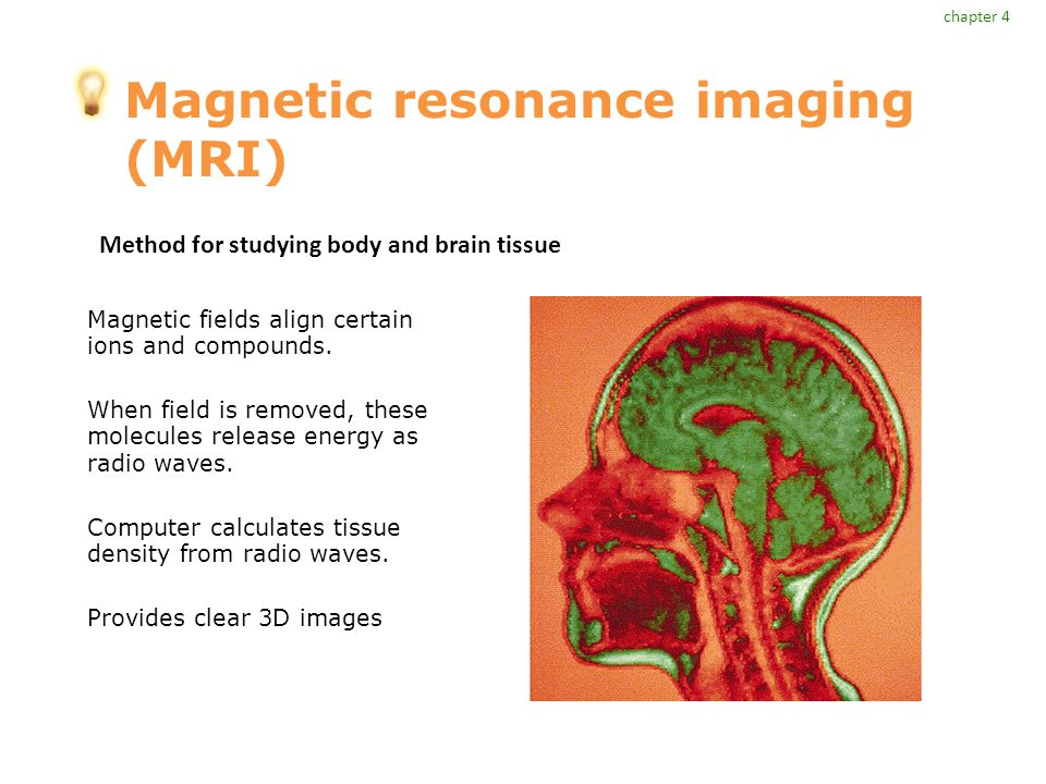 Magnetic resonance imaging (MRI) Magnetic fields align certain ions and compounds.