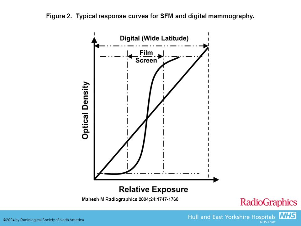 Figure 2.Typical response curves for SFM and digital mammography.
