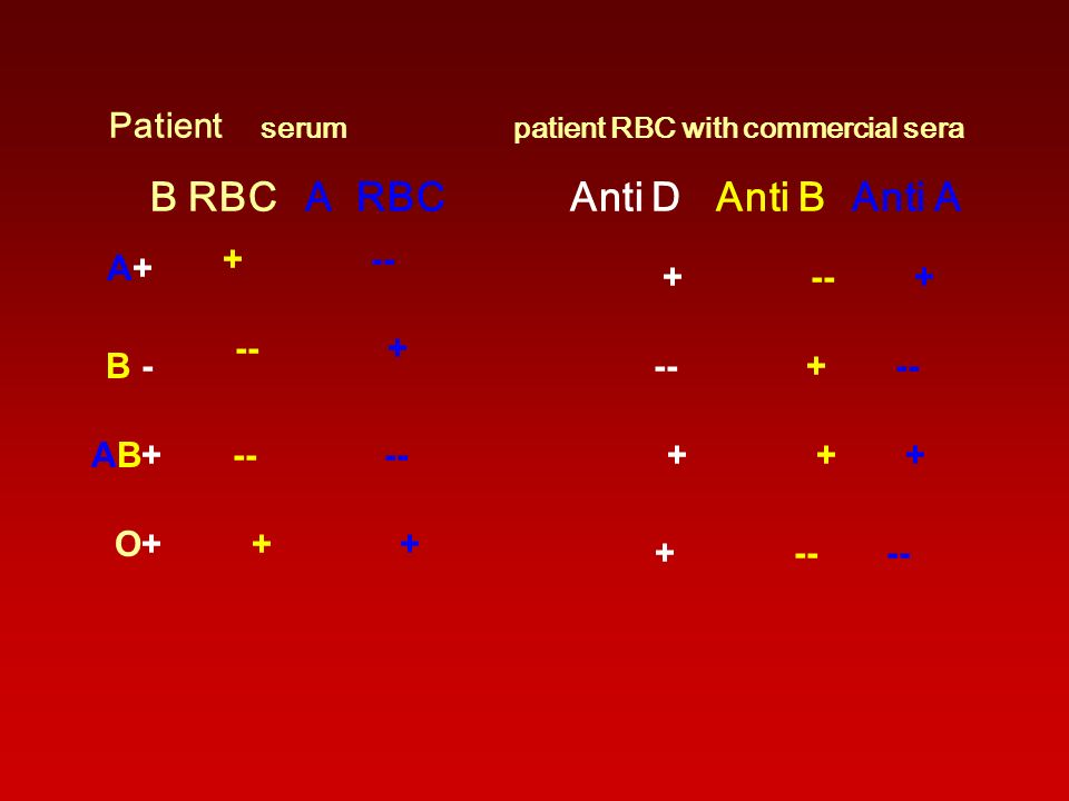 patient RBC with commercial sera serum Patient Anti A Anti B Anti D A RBC B RBC + -- + -- + A+A+ + + + -- --AB+AB+ -- + -- + -- B - -- -- + +O+O+