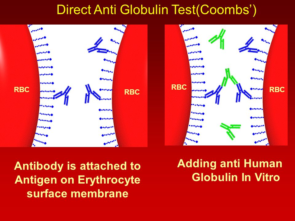 RBC Antibody is attached to Antigen on Erythrocyte surface membrane RBC Adding anti Human Globulin In Vitro Direct Anti Globulin Test(Coombs')
