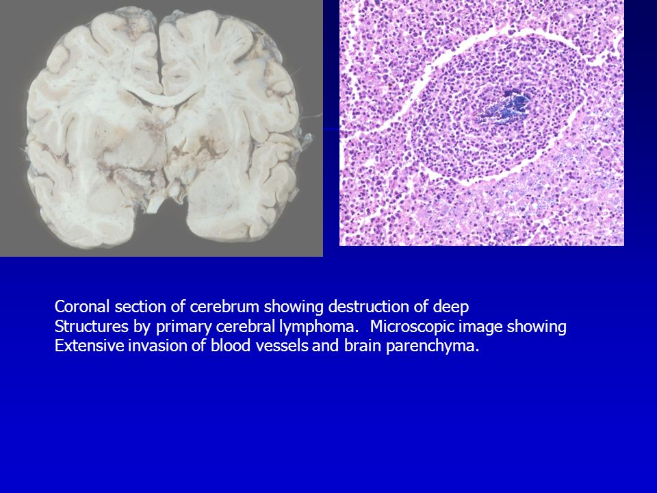 Coronal section of cerebrum showing destruction of deep Structures by primary cerebral lymphoma.