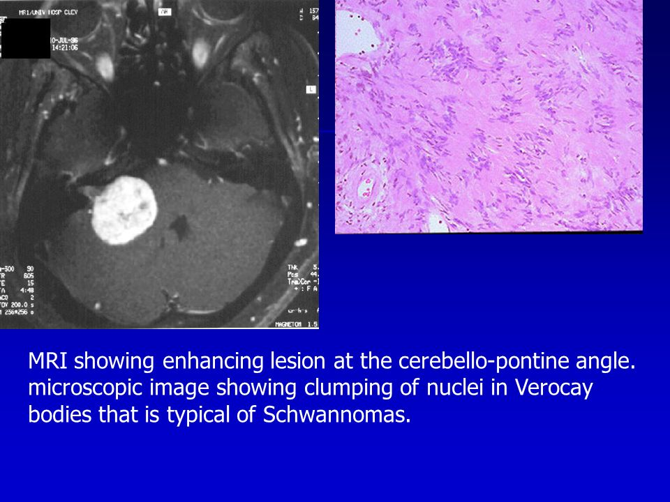 MRI showing enhancing lesion at the cerebello-pontine angle.
