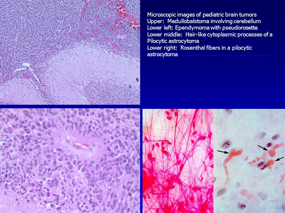Microscopic images of pediatric brain tumors Upper: Medullobalstoma involving cerebellum Lower left: Ependymoma with pseudorosette Lower middle: Hair-like cytoplasmic processes of a Pilocytic astrocytoma Lower right: Rosenthal fibers in a pilocytic astrocytoma