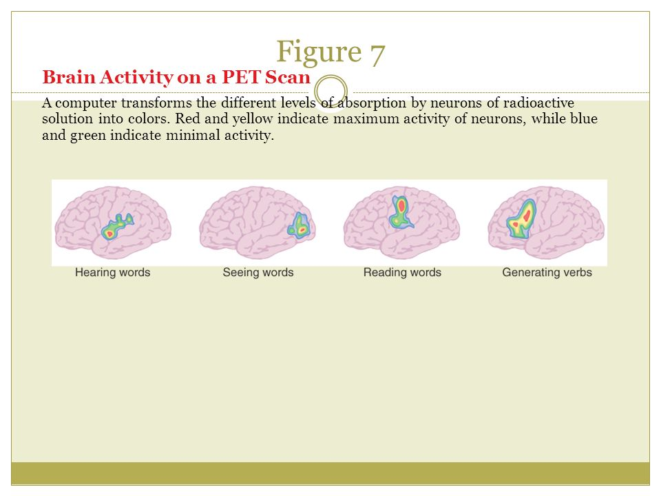 Figure 7 Brain Activity on a PET Scan A computer transforms the different levels of absorption by neurons of radioactive solution into colors.