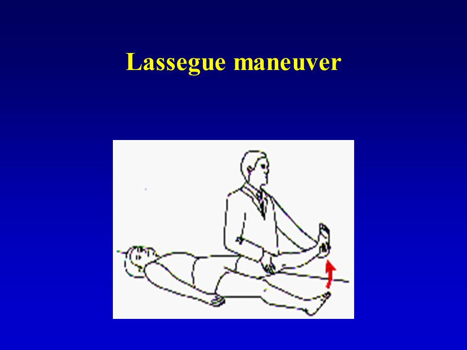 Lassegue maneuver