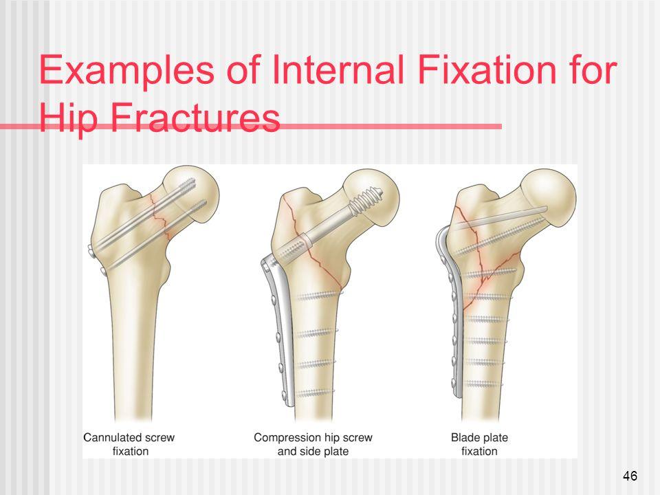 hip fractures p2 ip