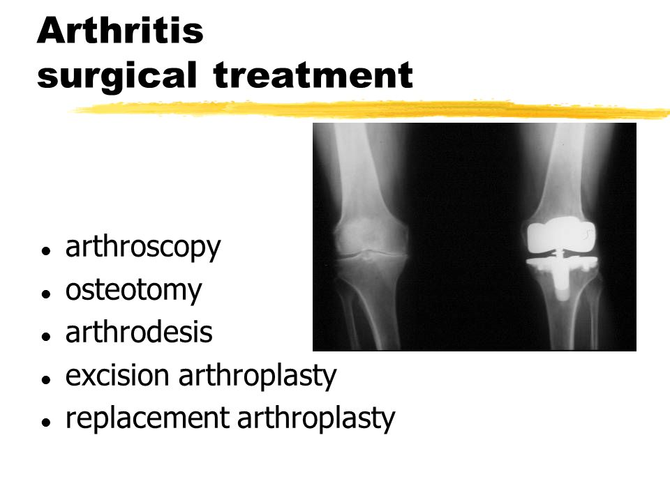 Arthritis surgical treatment l arthroscopy l osteotomy l arthrodesis l excision arthroplasty l replacement arthroplasty