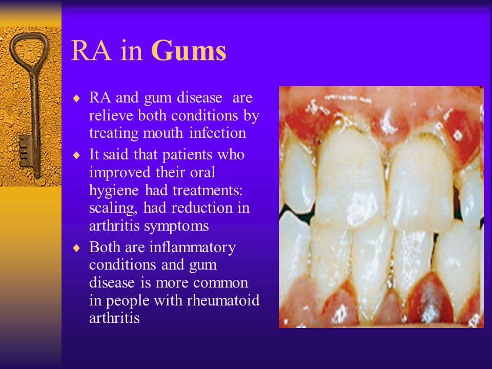 RA in Gums  RA and gum disease are relieve both conditions by treating mouth infection  It said that patients who improved their oral hygiene had treatments: scaling, had reduction in arthritis symptoms  Both are inflammatory conditions and gum disease is more common in people with rheumatoid arthritis