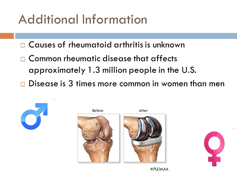 Additional Information  Causes of rheumatoid arthritis is unknown  Common rheumatic disease that affects approximately 1.3 million people in the U.S.