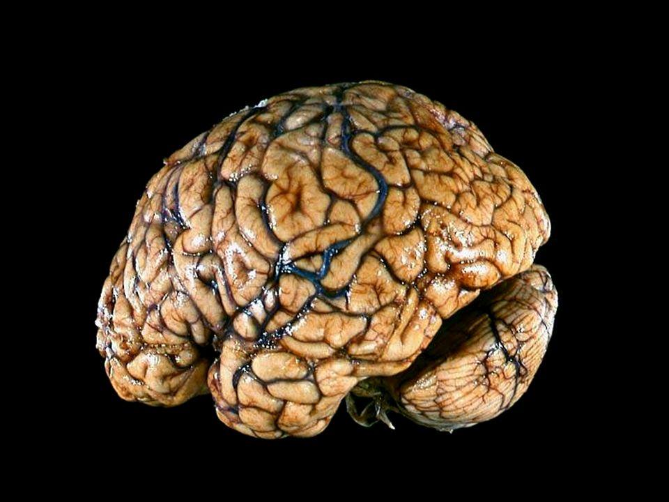 recipe: brain of revolution [33]