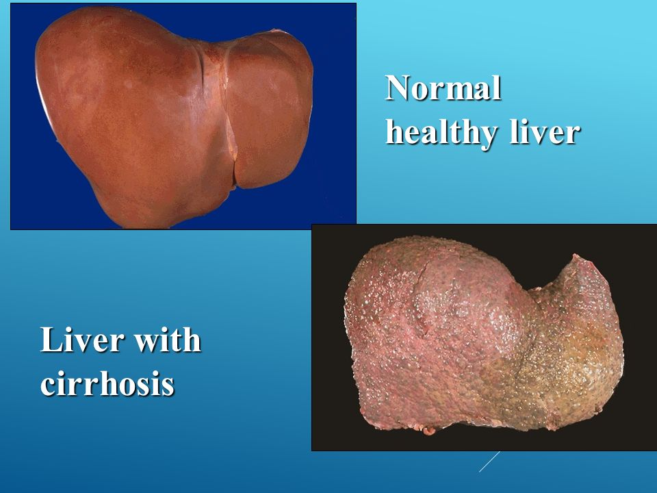 Normal healthy liver Liver with cirrhosis