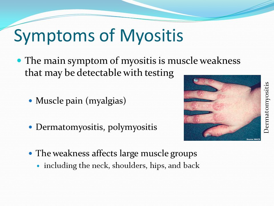 1000  images about Myositis Info & Publications on Pinterest ...