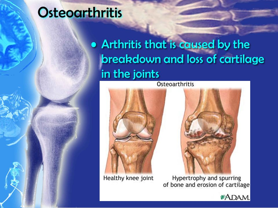 Osteoarthritis Arthritis that is caused by the breakdown and loss of cartilage in the joints