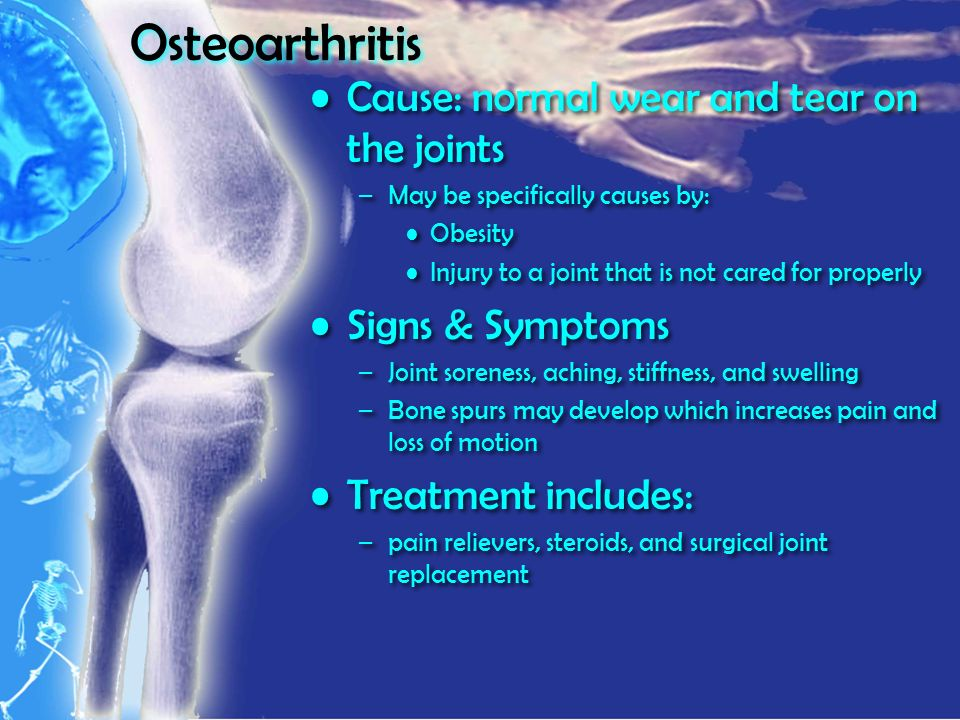 Osteoarthritis Cause: normal wear and tear on the joints –May be specifically causes by: Obesity Injury to a joint that is not cared for properly Signs & Symptoms –Joint soreness, aching, stiffness, and swelling –Bone spurs may develop which increases pain and loss of motion Treatment includes: –pain relievers, steroids, and surgical joint replacement Cause: normal wear and tear on the joints –May be specifically causes by: Obesity Injury to a joint that is not cared for properly Signs & Symptoms –Joint soreness, aching, stiffness, and swelling –Bone spurs may develop which increases pain and loss of motion Treatment includes: –pain relievers, steroids, and surgical joint replacement