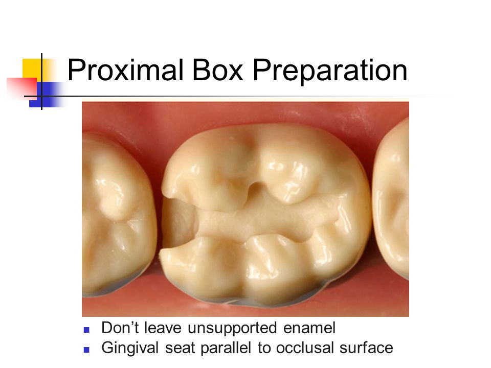 Don't leave unsupported enamel Gingival seat parallel to occlusal surface Proximal Box Preparation