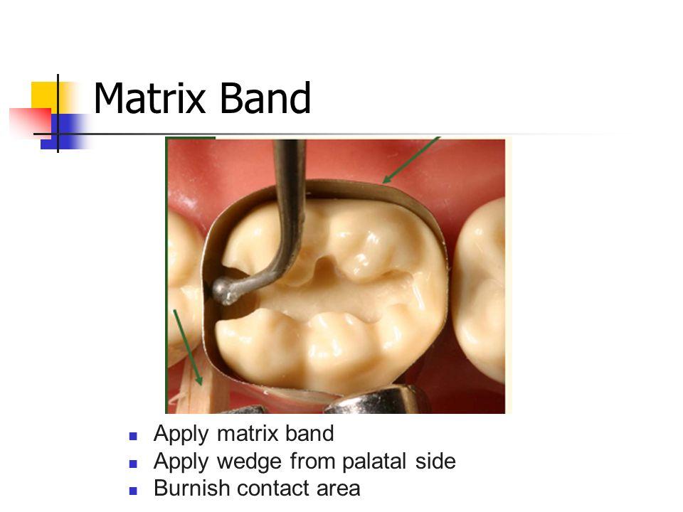 Matrix Band Apply matrix band Apply wedge from palatal side Burnish contact area
