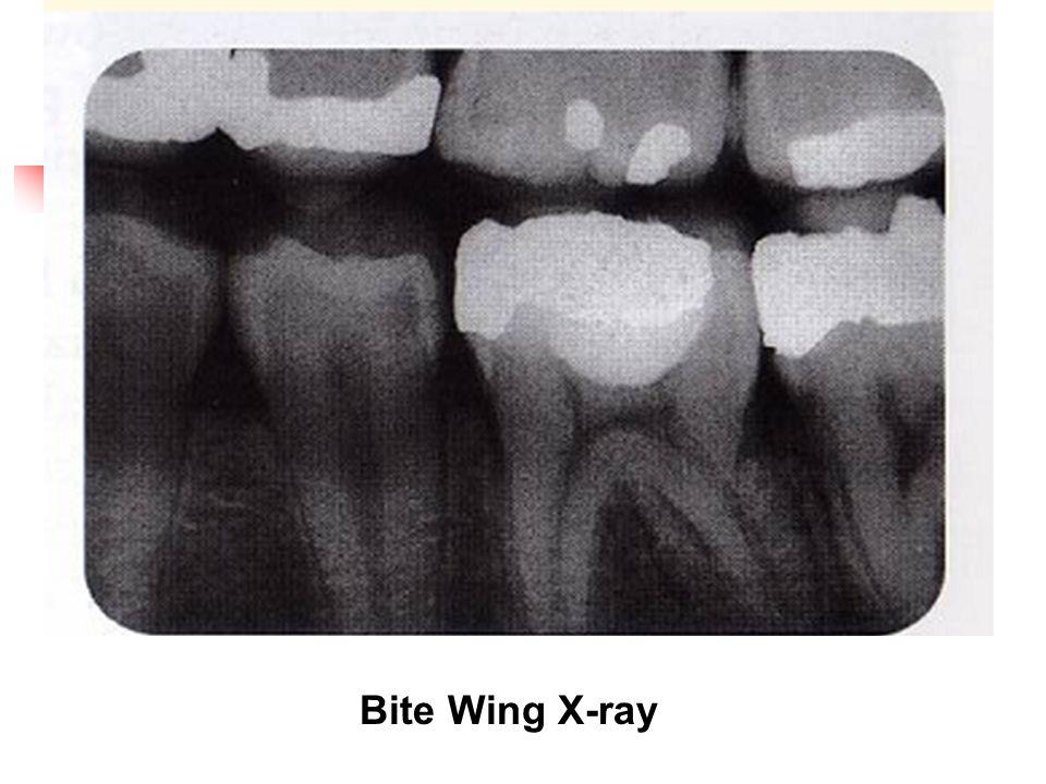 Bite Wing X-ray