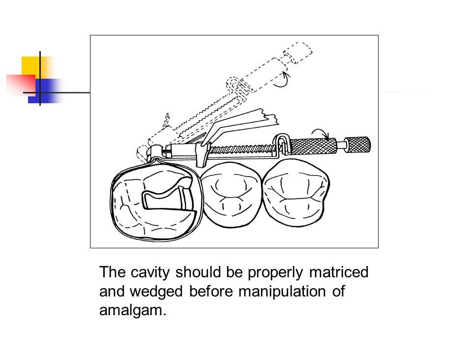 The cavity should be properly matriced and wedged before manipulation of amalgam.