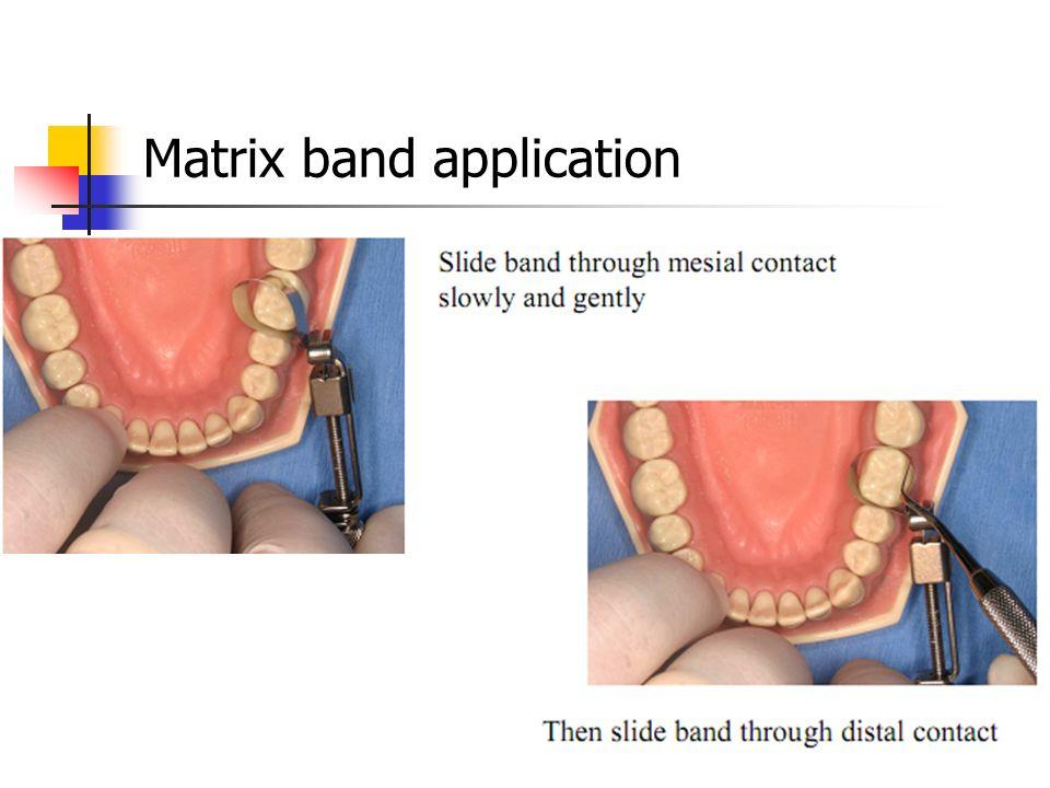 Matrix band application