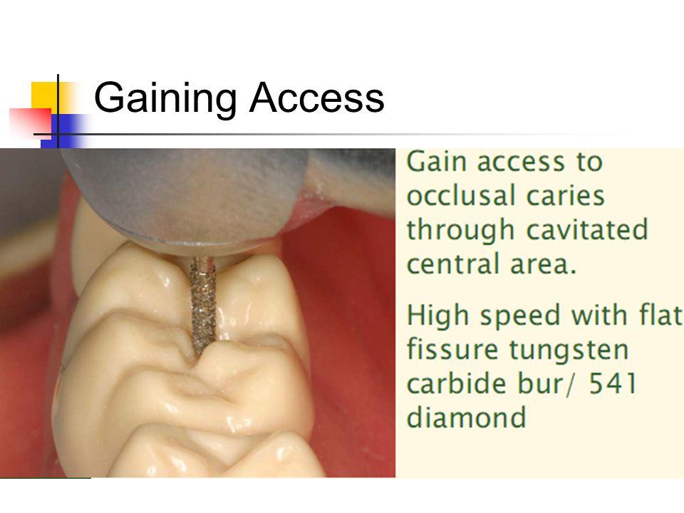 Gaining Access